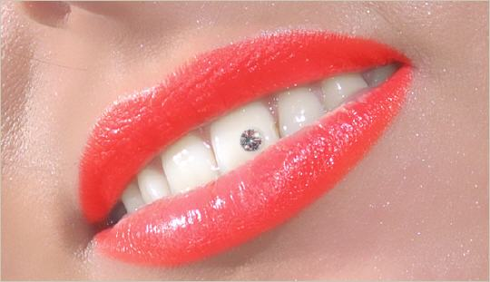 Zahnsteinchen